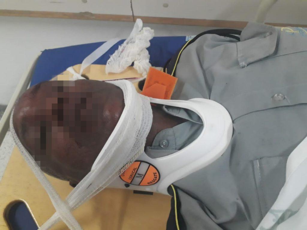 Vigilante da CPTM fica ferido